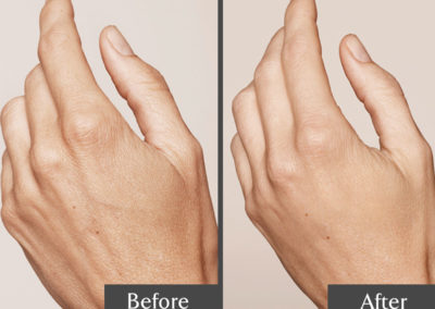 Hand-Rejuvenation-01